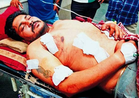 5 bullets were shot. Yet police station – Reached hospital son of Congress Leader